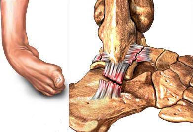 Ayak ve ayak bileği travmaları (ayakta kırık ve burkulmalar)