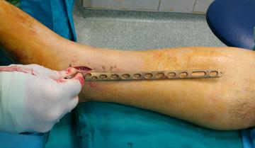 cankaya ortopedi